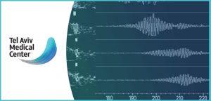 בדיקת MES – Microembolic Signal