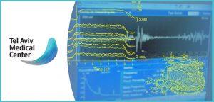ההיסטוריה של בדיקת אלקטרומיוגרפיה EMG