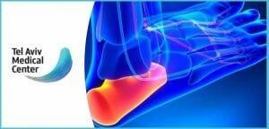 כאב בעקב הרגל